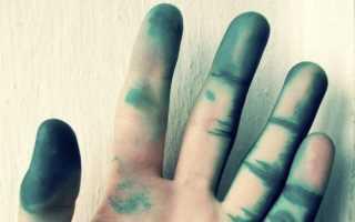 Чем отмыть зеленку с кожи рук. Как быстро оттереть зеленку с кожи, ногтей и волос: средства для взрослых и малышей. Удаление зелёнки с цветных рубашек, футболок, простыней
