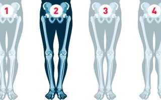 Что можно сделать для исправления кривых ног в домашних условиях? Исправление кривизны ног: современные методы и способы.