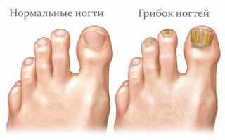 Как выглядит грибок ногтей на начальной стадии (фото) и как его лечить? Как выглядит грибок ногтей на ногах, симптомы и способы лечения