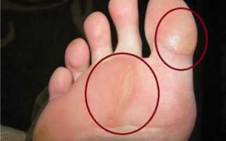 Лечение сухих мозолей на ногах народными средствами. Люди спрашивают: как избавиться от сухих мозолей на пальцах ног в домашних условиях? Рейтинг народных средств