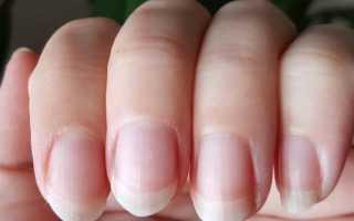 Ногти не гладкие а имеют рельефные выступы. Почему появляются волнистые ногти? Горизонтальные полоски свидетельствуют о вероятных заболеваниях инфекционного плана