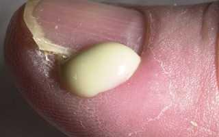 Как убрать гной из раны на пальце руки или ноги? Гнойный нарыв под ногтём и его лечение