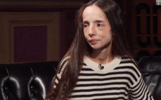 Девочка анорексичка из битвы экстрасенсов катя яковлева. Когда молчать больше нельзя: история мамы девушки с анорексией
