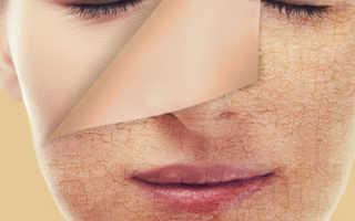 Уход за сухой кожей лица народными средствами. Стянутая и очень сухая кожа тела, что делать? Эффективные косметические средства и народные рецепты. Для сухой кожи из кефира