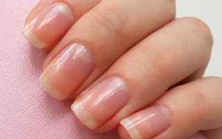 Как определить заболевание человека по ногтям ног. Диагностика здоровья по ногтям пальцев рук. Фото