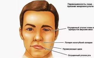 Проявления микроинсульта. Геморрагический инсульт: симптомы. Как проявляется микроинсульт у мужчин