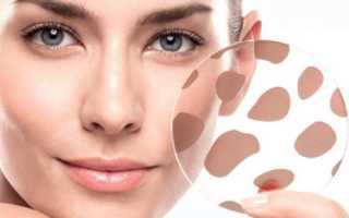 Пигментация: причины, симптомы и лечение. Что важно знать о нарушении пигментации кожи