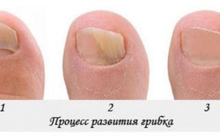 Как вылечить грибок ногтей в домашних условиях быстро и эффективно? Советы врача по лечению грибка ногтей дома. Главный вопрос врачу-специалисту: как лечить грибок на ногах