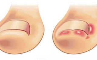 Как справиться с бедой — вросшим ногтем на большом пальце ноги: фото, методы лечения лекарственными препаратами и народными средствами. Беспокоит вросший ноготь: что делать